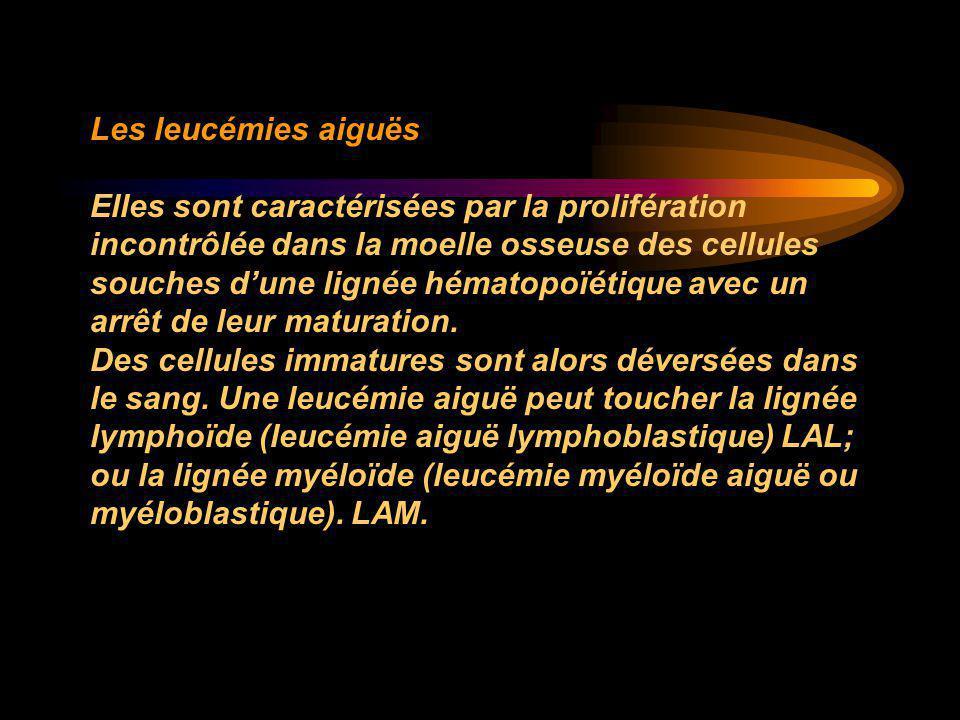 Les leucémies aiguës Elles sont caractérisées par la prolifération incontrôlée dans la moelle osseuse des cellules souches d'une lignée hématopoïétiqu