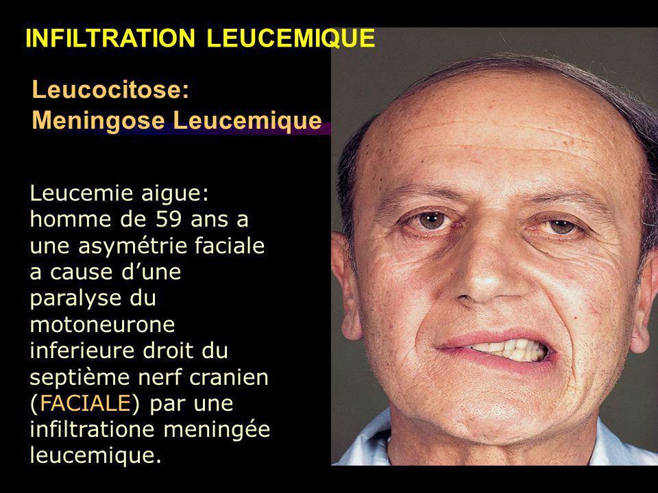 Leucemie aigue: homme de 59 ans a une asymétrie faciale a cause d'une paralyse du motoneurone inferieure droit du septième nerf cranien (FACIALE) par