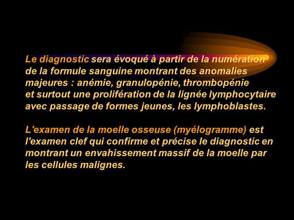 Le diagnostic sera évoqué à partir de la numération de la formule sanguine montrant des anomalies majeures : anémie, granulopénie, thrombopénie et sur