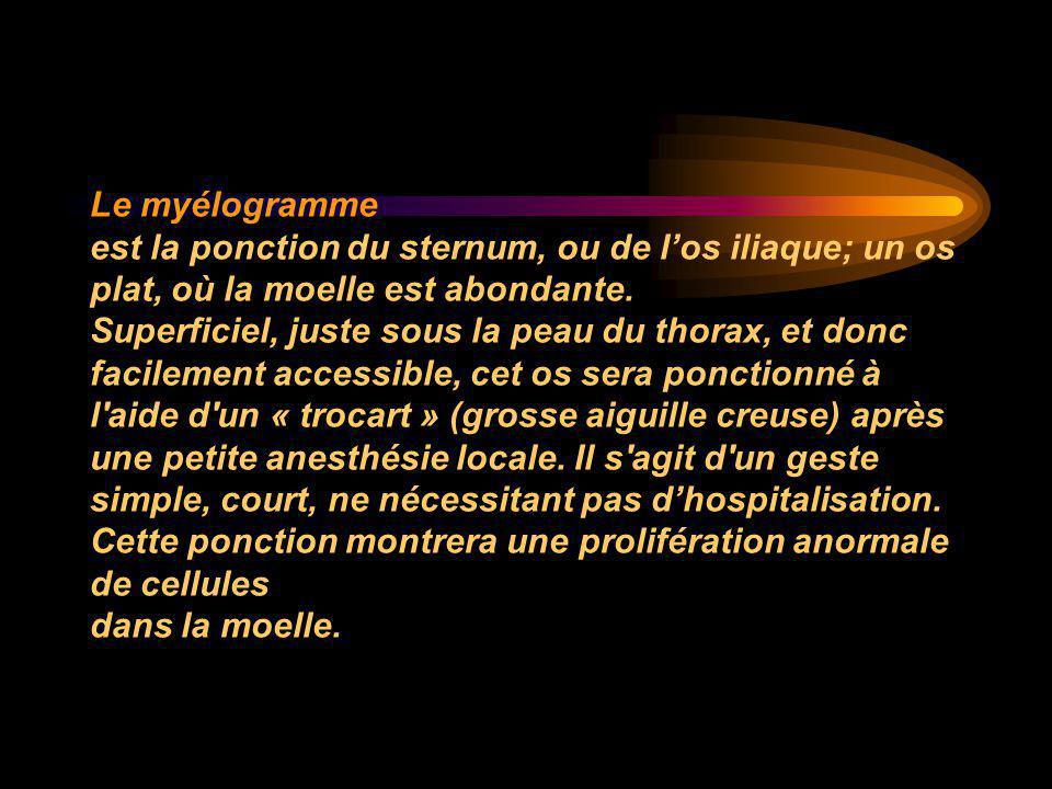 Le myélogramme est la ponction du sternum, ou de l'os iliaque; un os plat, où la moelle est abondante. Superficiel, juste sous la peau du thorax, et d
