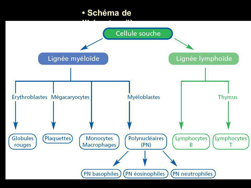  les leucémies aiguës caractérisées par une évolution clinique rapide, associée à une prolifération dans la moelle osseuse (voire dans le sang) de cellules bloquées à un stade précoce de leur différenciation (qu'on appelle les blastes ou encore hémoblastes).