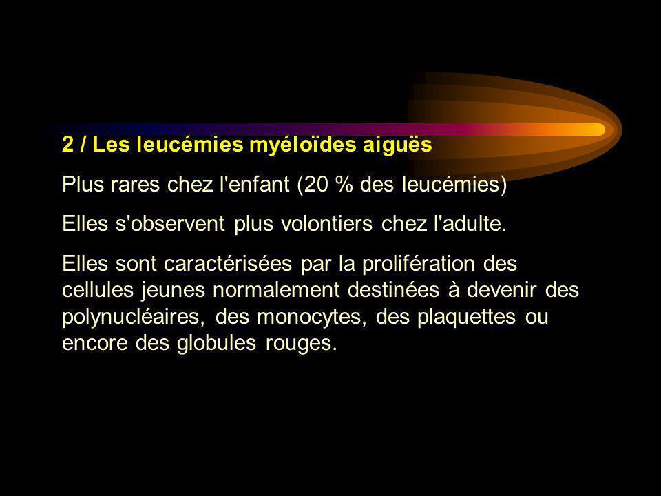 2 / Les leucémies myéloïdes aiguës Plus rares chez l'enfant (20 % des leucémies) Elles s'observent plus volontiers chez l'adulte. Elles sont caractéri