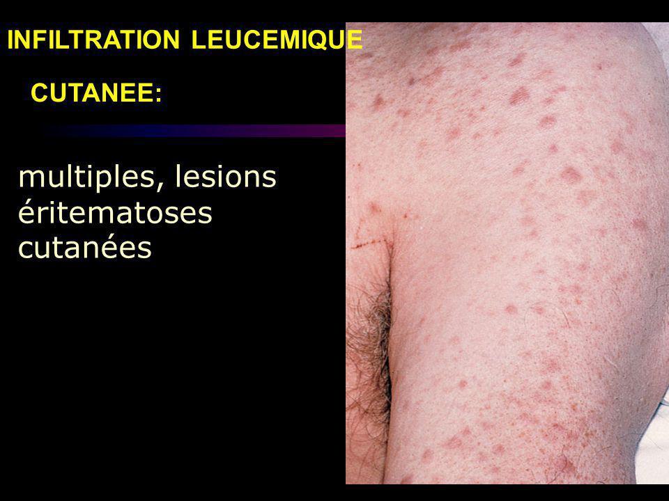 multiples, lesions éritematoses cutanées CUTANEE: INFILTRATION LEUCEMIQUE