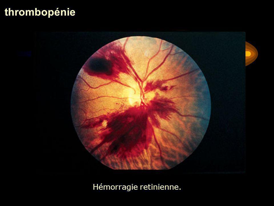 Hémorragie retinienne.
