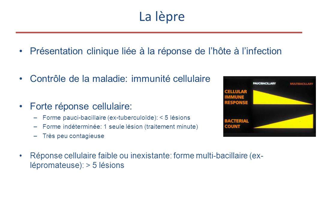 La lèpre •Présentation clinique liée à la réponse de l'hôte à l'infection •Contrôle de la maladie: immunité cellulaire •Forte réponse cellulaire: –Forme pauci-bacillaire (ex-tuberculoïde): < 5 lésions –Forme indéterminée: 1 seule lésion (traitement minute) –Très peu contagieuse •Réponse cellulaire faible ou inexistante: forme multi-bacillaire (ex- lépromateuse): > 5 lésions