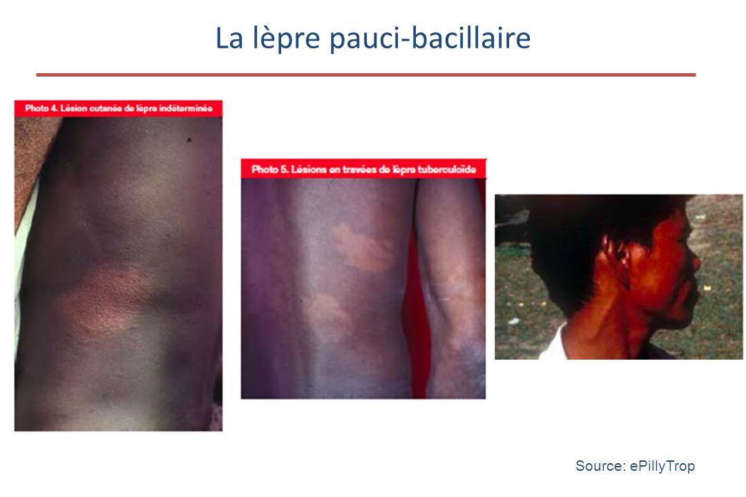 La lèpre pauci-bacillaire Source: ePillyTrop