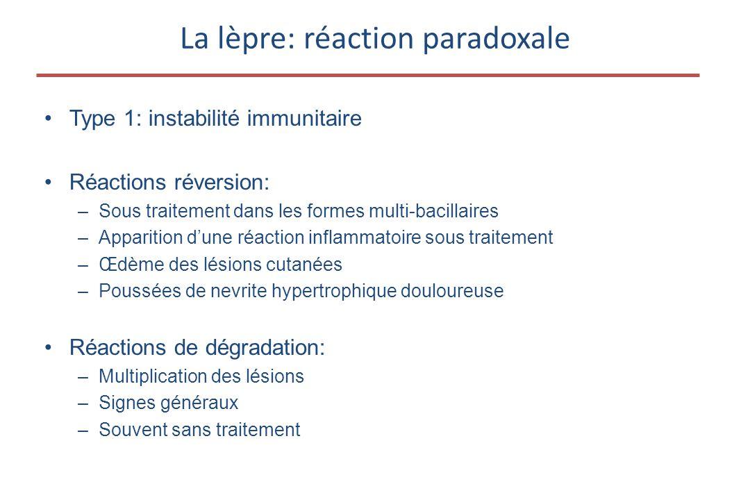 La lèpre: réaction paradoxale •Type 1: instabilité immunitaire •Réactions réversion: –Sous traitement dans les formes multi-bacillaires –Apparition d'