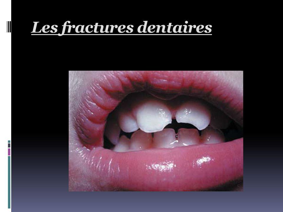 Fracture coronaire pénétrante  La tranche de section ouvre la cavité pulpaire  Douleur vive irradiée, d'origine pulpaire et ligamentaire (parodontite traumatique)