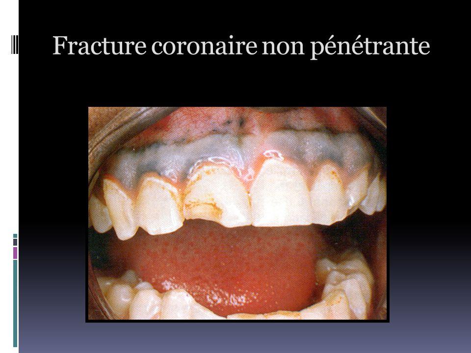 Fracture coronaire non pénétrante