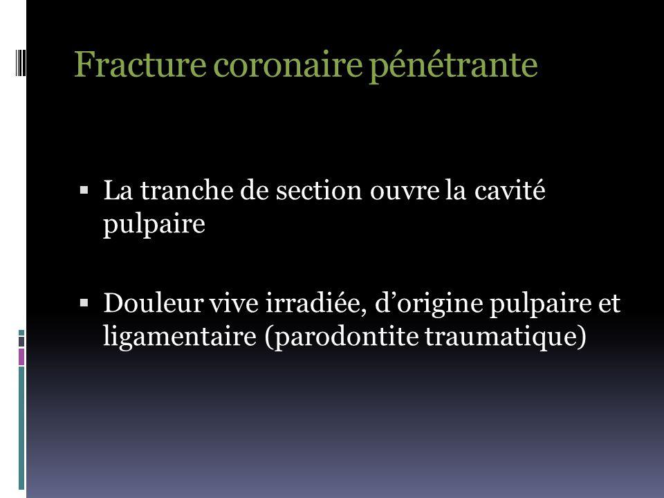 Fracture coronaire pénétrante  La tranche de section ouvre la cavité pulpaire  Douleur vive irradiée, d'origine pulpaire et ligamentaire (parodontit