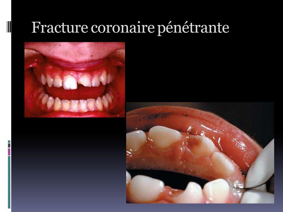 Fracture coronaire pénétrante