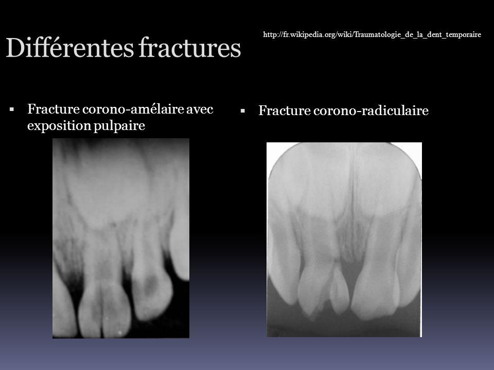 Différentes fractures  Fracture corono-amélaire avec exposition pulpaire  Fracture corono-radiculaire http://fr.wikipedia.org/wiki/Traumatologie_de_