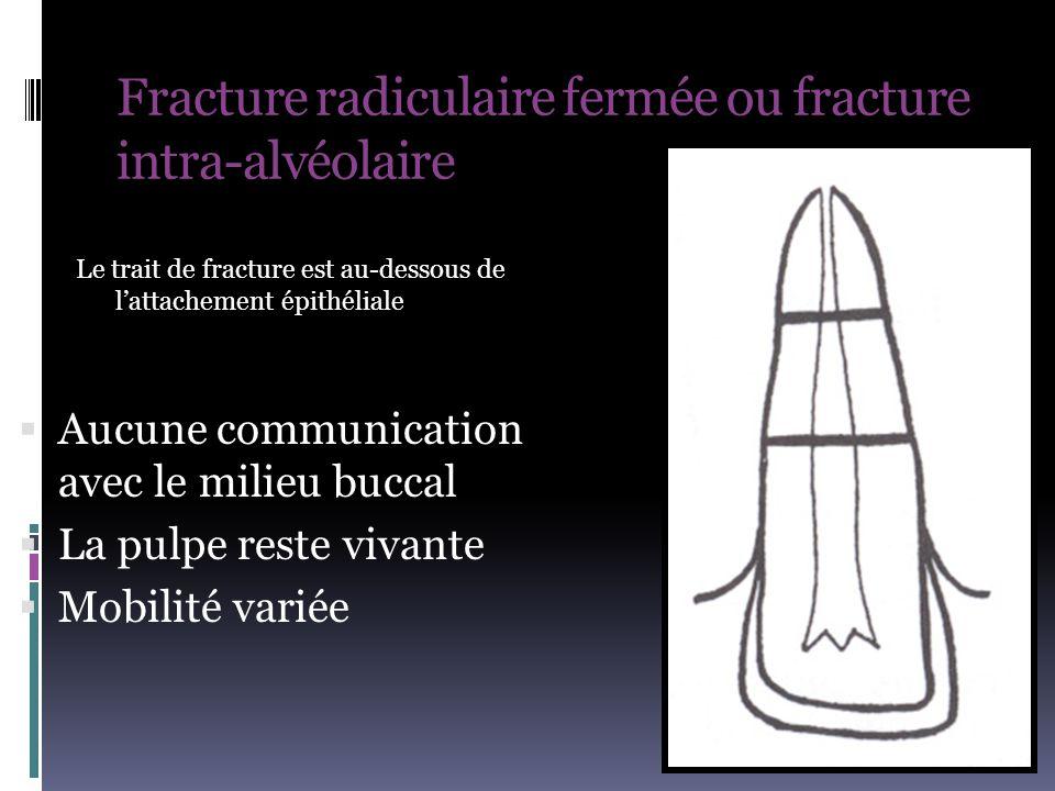 Fracture radiculaire fermée ou fracture intra-alvéolaire  Aucune communication avec le milieu buccal  La pulpe reste vivante  Mobilité variée Le tr