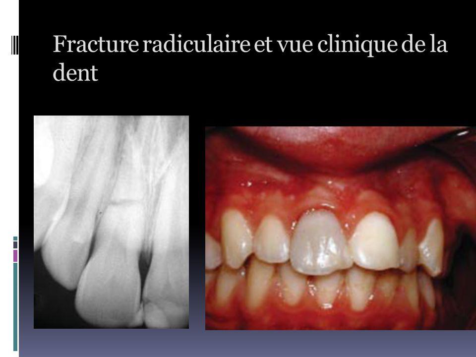 Fracture radiculaire et vue clinique de la dent