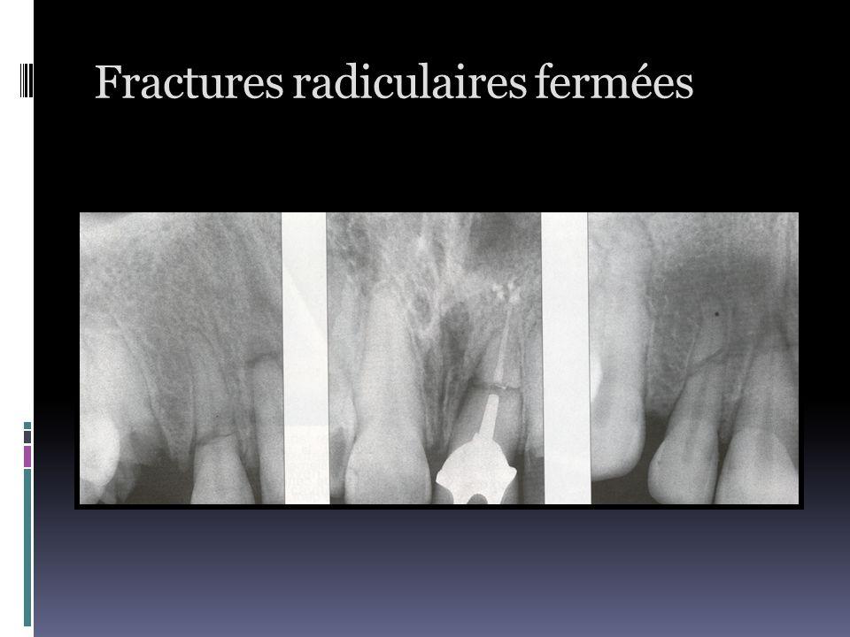 Fractures radiculaires fermées