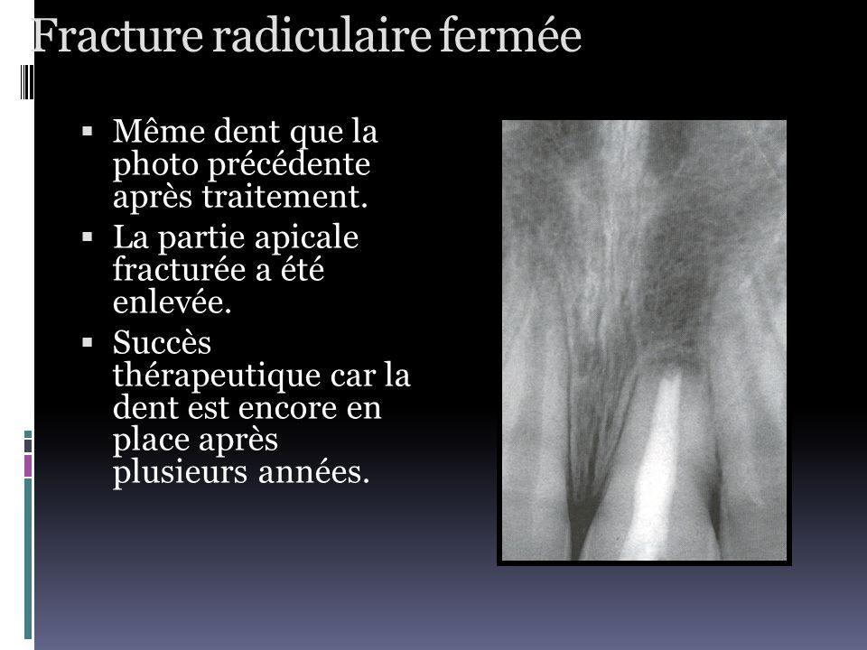 Fracture radiculaire fermée  Même dent que la photo précédente après traitement.  La partie apicale fracturée a été enlevée.  Succès thérapeutique