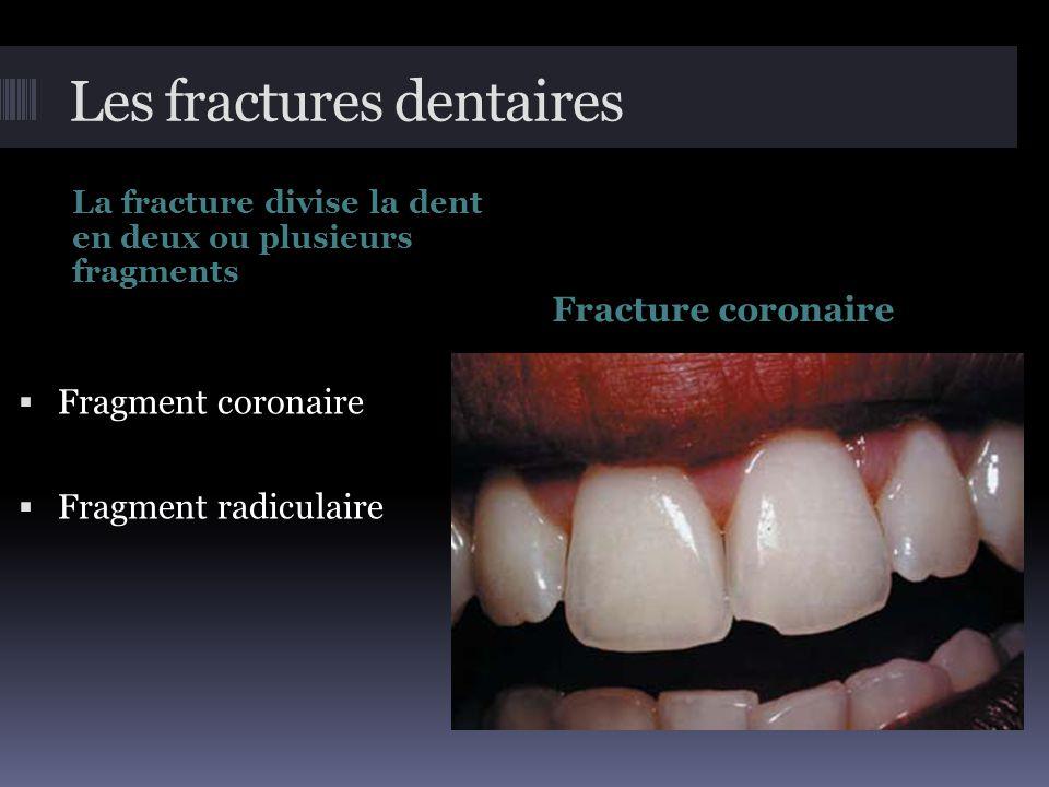 Les fractures dentaires La fracture divise la dent en deux ou plusieurs fragments Fracture coronaire  Fragment coronaire  Fragment radiculaire