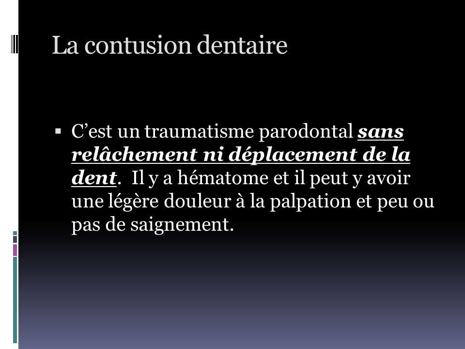 La contusion dentaire  C'est un traumatisme parodontal sans relâchement ni déplacement de la dent. Il y a hématome et il peut y avoir une légère doul