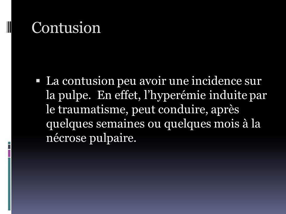 Contusion  La contusion peu avoir une incidence sur la pulpe. En effet, l'hyperémie induite par le traumatisme, peut conduire, après quelques semaine
