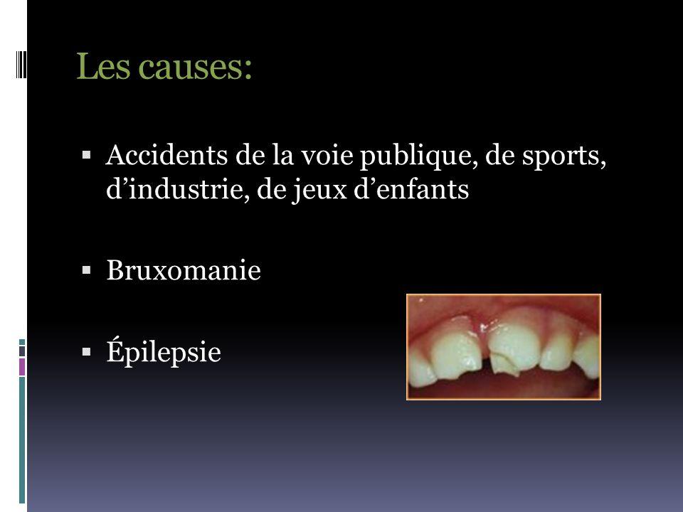 Les causes:  Accidents de la voie publique, de sports, d'industrie, de jeux d'enfants  Bruxomanie  Épilepsie