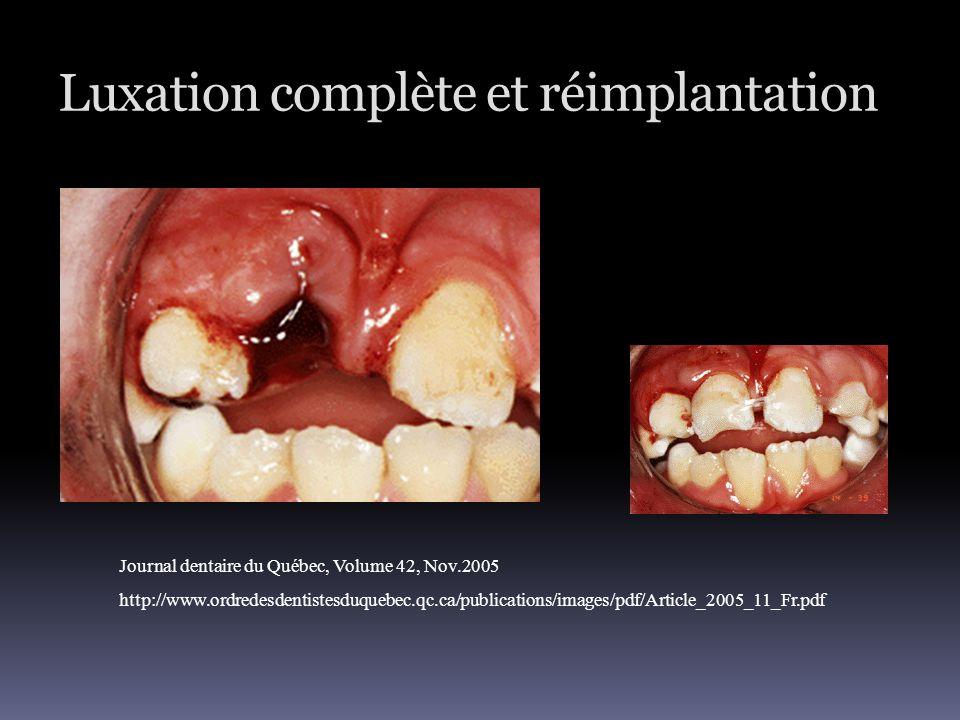 Luxation complète et réimplantation Journal dentaire du Québec, Volume 42, Nov.2005 http://www.ordredesdentistesduquebec.qc.ca/publications/images/pdf