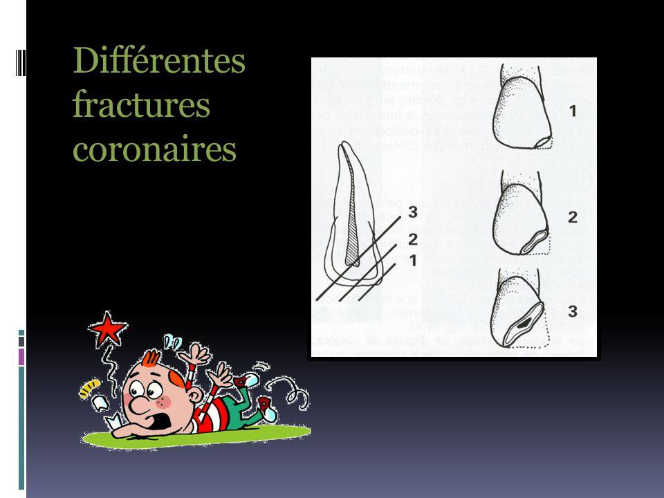 Fracture coronaire non pénétrante  Le trait de fracture traverse l'émail et la dentine.
