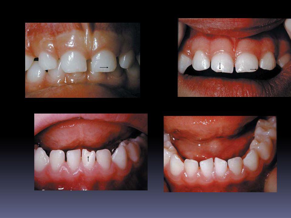 Intrusion dentaire chez un enfant Traumatisme où la dent est enfoncée dans son alvéole.