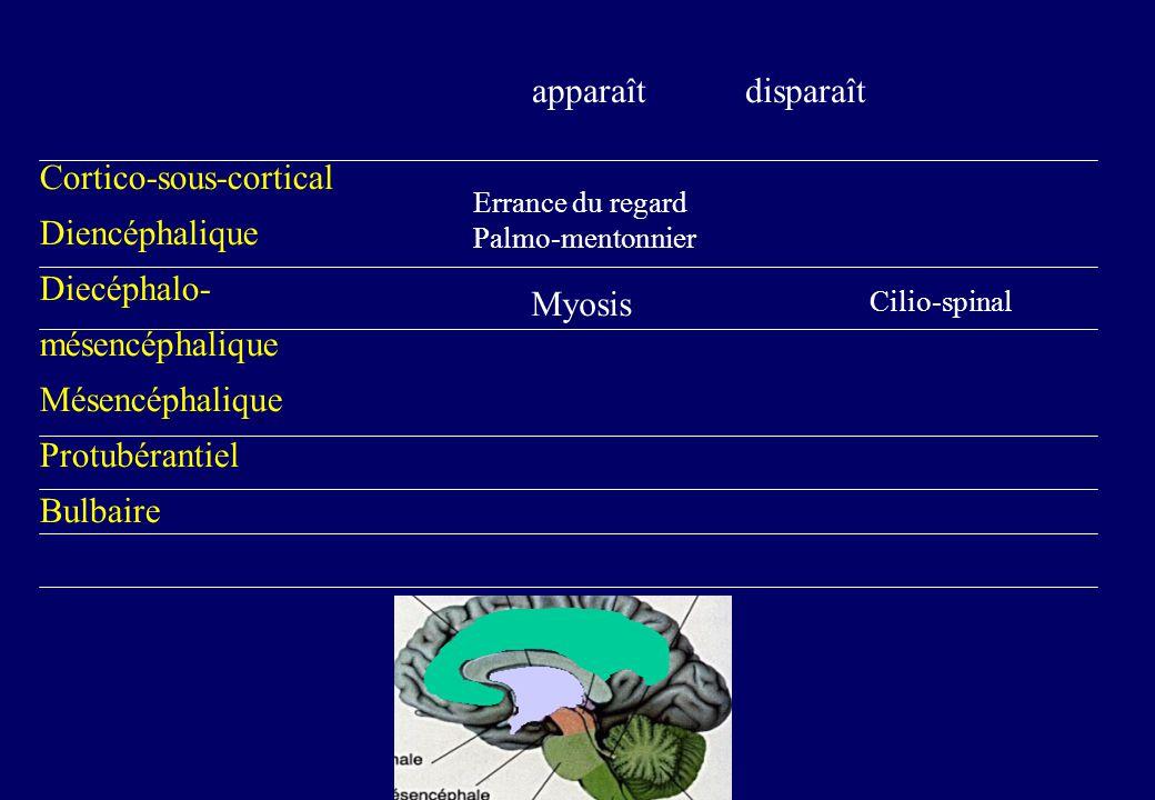 Cortico-sous-cortical Diencéphalique Diecéphalo- mésencéphalique Mésencéphalique Protubérantiel Bulbaire apparaît disparaît Errance du regard Palmo-mentonnier Myosis Cilio-spinal