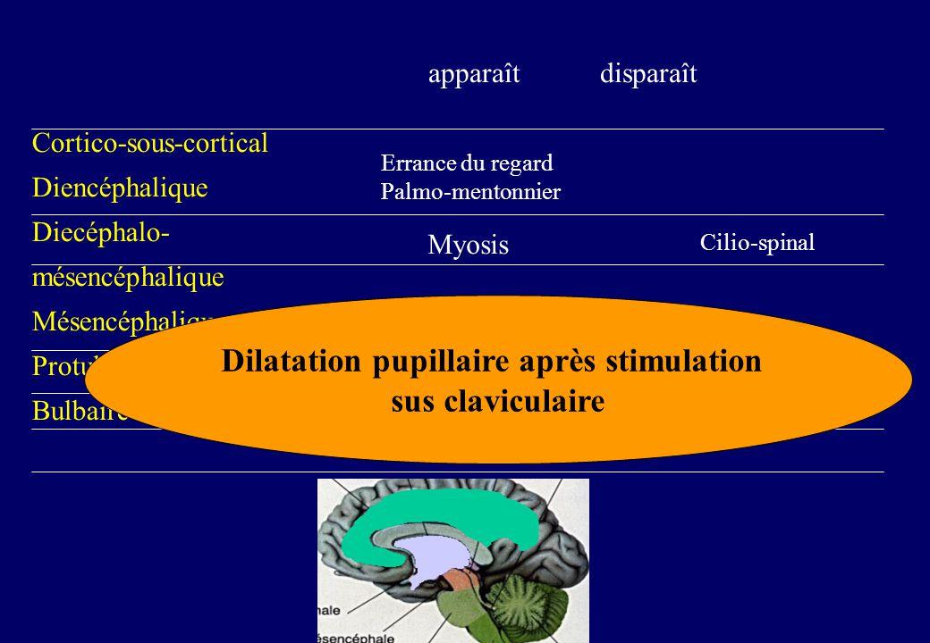 Cortico-sous-cortical Diencéphalique Diecéphalo- mésencéphalique Mésencéphalique Protubérantiel Bulbaire apparaît disparaît Errance du regard Palmo-mentonnier Myosis Cilio-spinal Dilatation pupillaire après stimulation sus claviculaire