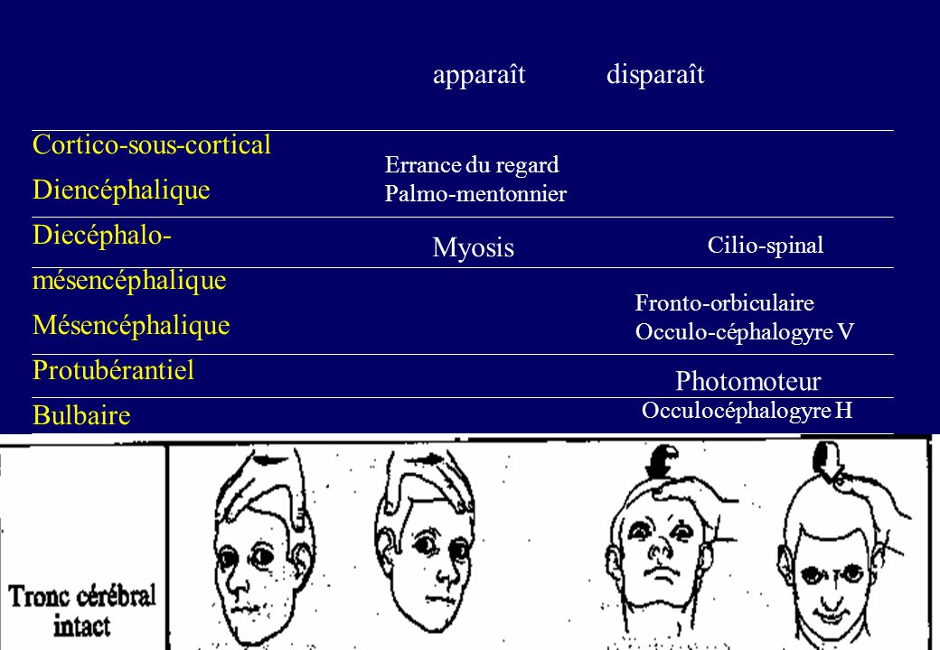 Cortico-sous-cortical Diencéphalique Diecéphalo- mésencéphalique Mésencéphalique Protubérantiel Bulbaire apparaît disparaît Errance du regard Palmo-mentonnier Myosis Cilio-spinal Fronto-orbiculaire Occulo-céphalogyre V Photomoteur Occulocéphalogyre H