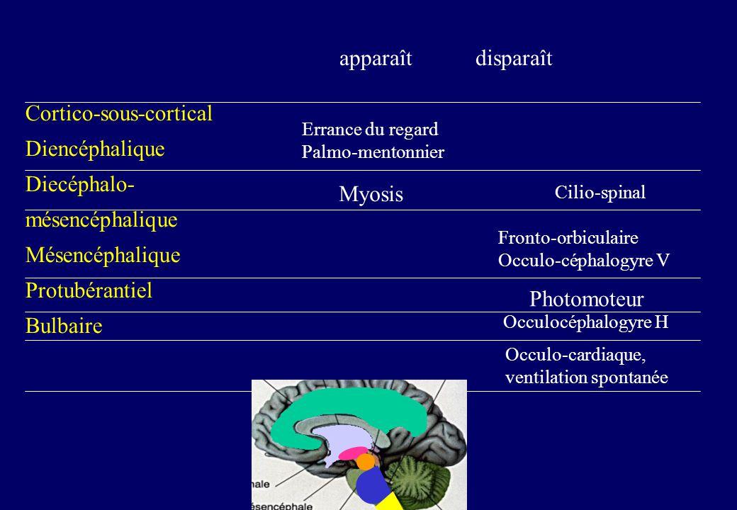 Cortico-sous-cortical Diencéphalique Diecéphalo- mésencéphalique Mésencéphalique Protubérantiel Bulbaire apparaît disparaît Errance du regard Palmo-mentonnier Myosis Cilio-spinal Fronto-orbiculaire Occulo-céphalogyre V Photomoteur Occulocéphalogyre H Occulo-cardiaque, ventilation spontanée