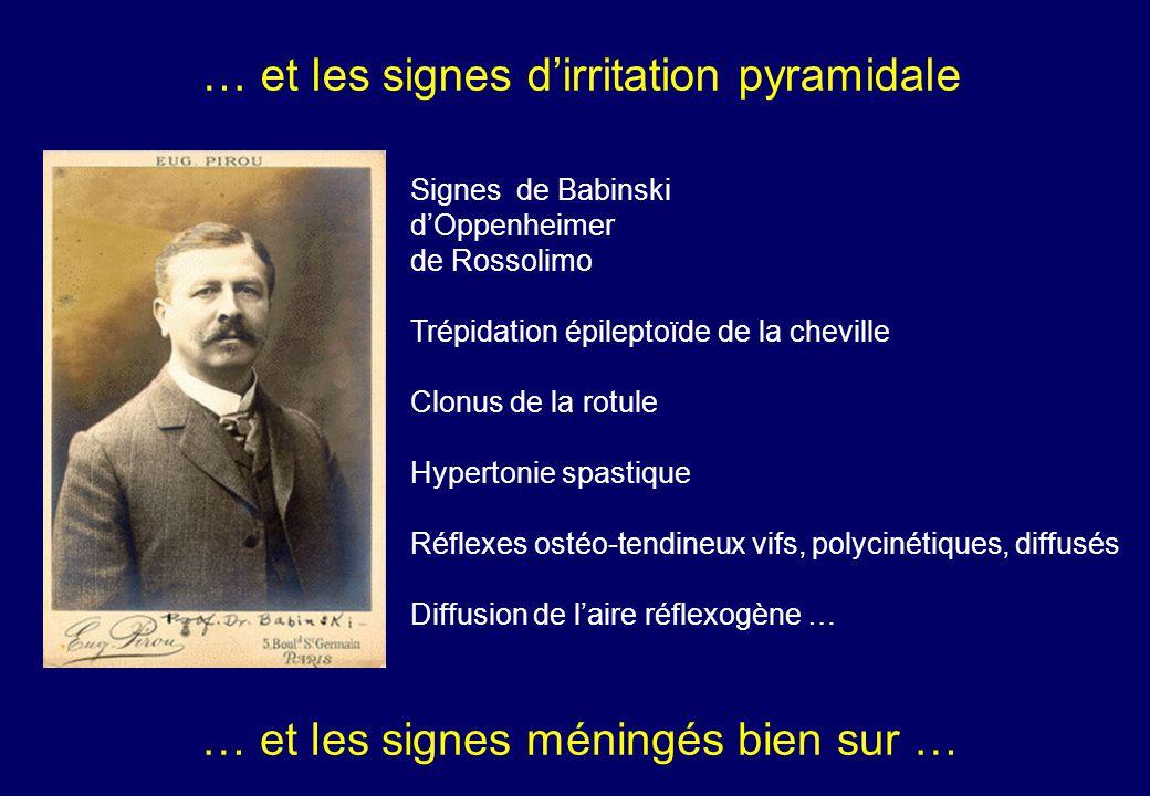 … et les signes d'irritation pyramidale Signesde Babinski d'Oppenheimer de Rossolimo Trépidation épileptoïde de la cheville Clonus de la rotule Hypertonie spastique Réflexes ostéo-tendineux vifs, polycinétiques, diffusés Diffusion de l'aire réflexogène … … et les signes méningés bien sur …