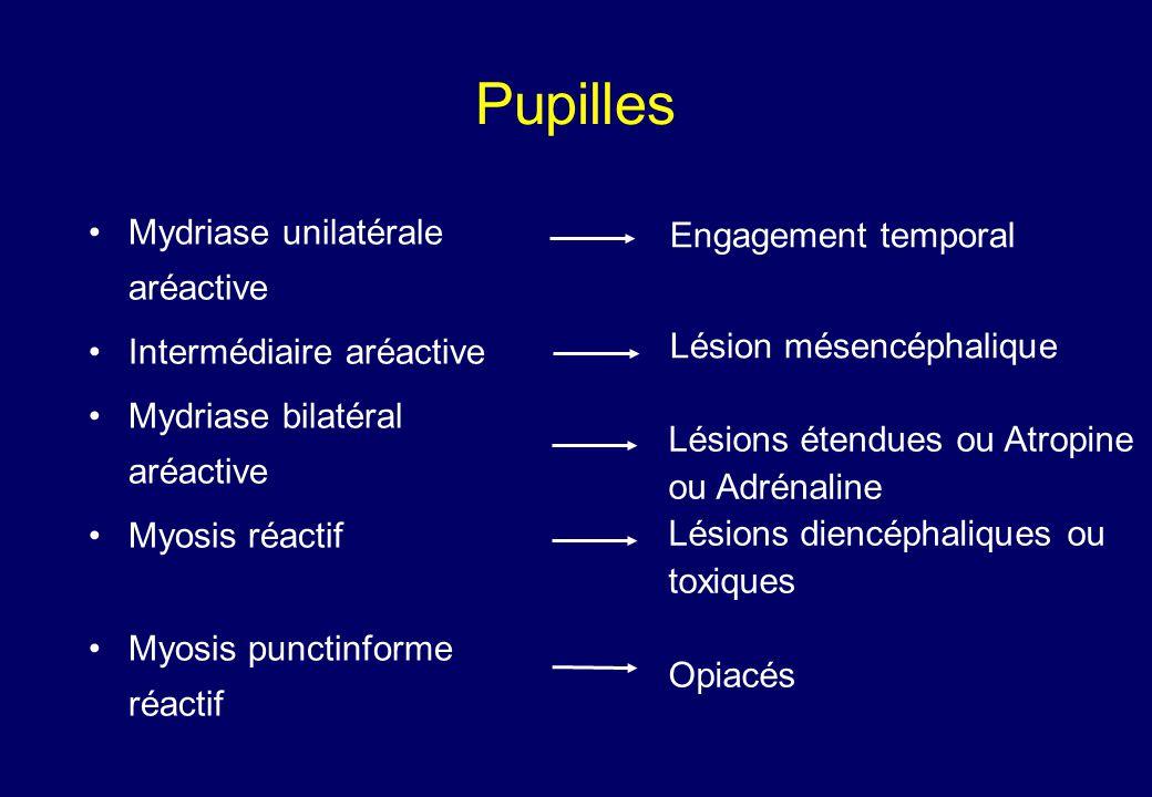 Pupilles •Mydriase unilatérale aréactive •Intermédiaire aréactive •Mydriase bilatéral aréactive •Myosis réactif •Myosis punctinforme réactif Engagement temporal Lésion mésencéphalique Lésions étendues ou Atropine ou Adrénaline Lésions diencéphaliques ou toxiques Opiacés