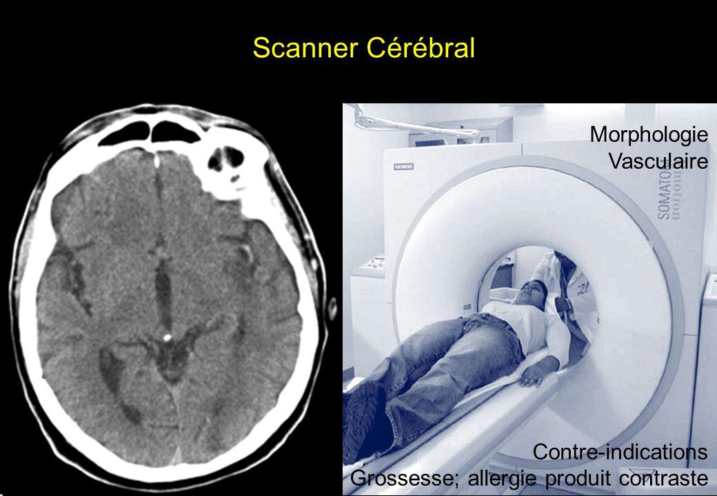 Scanner Cérébral Morphologie Vasculaire Contre-indications Grossesse; allergie produit contraste
