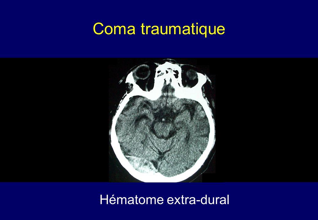 Coma traumatique Hématome extra-dural