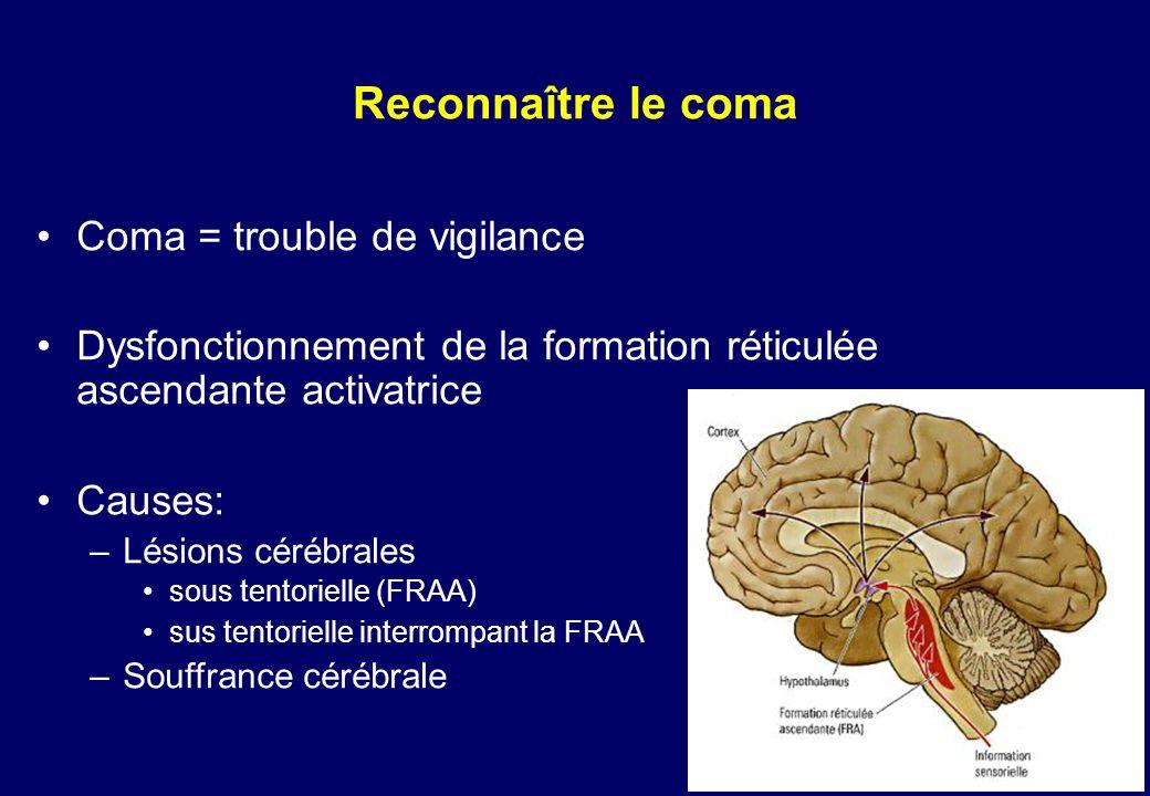 Reconnaître le coma •Coma = trouble de vigilance •Dysfonctionnement de la formation réticulée ascendante activatrice •Causes: –Lésions cérébrales •sous tentorielle (FRAA) •sus tentorielle interrompant la FRAA –Souffrance cérébrale