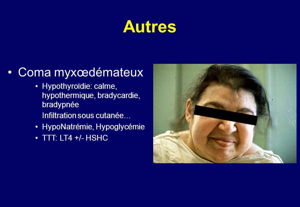 Autres •Coma myxœdémateux •Hypothyroïdie: calme, hypothermique, bradycardie, bradypnée Infiltration sous cutanée...