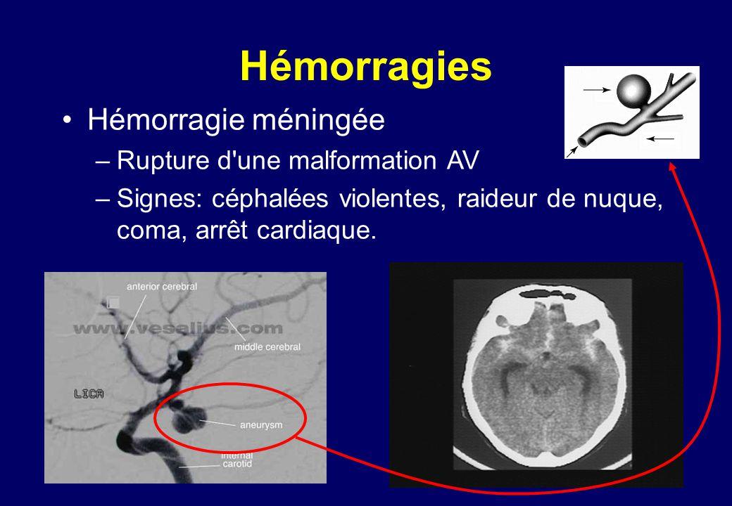 Hémorragies •Hémorragie méningée –Rupture d une malformation AV –Signes: céphalées violentes, raideur de nuque, coma, arrêt cardiaque.