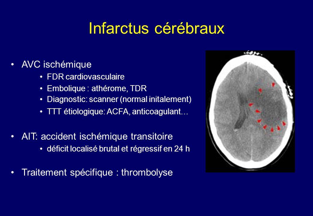 Infarctus cérébraux •AVC ischémique •FDR cardiovasculaire •Embolique : athérome, TDR •Diagnostic: scanner (normal initalement) •TTT étiologique: ACFA, anticoagulant… •AIT: accident ischémique transitoire •déficit localisé brutal et régressif en 24 h •Traitement spécifique : thrombolyse