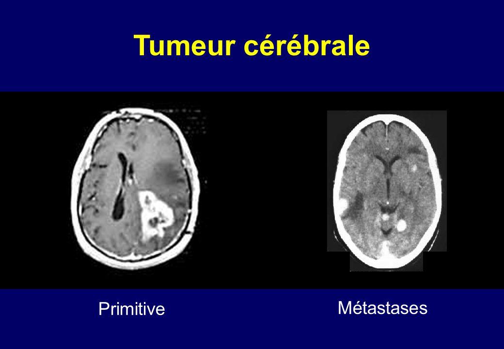 Tumeur cérébrale Primitive Métastases