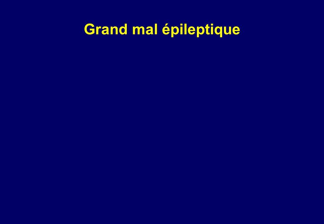 Grand mal épileptique
