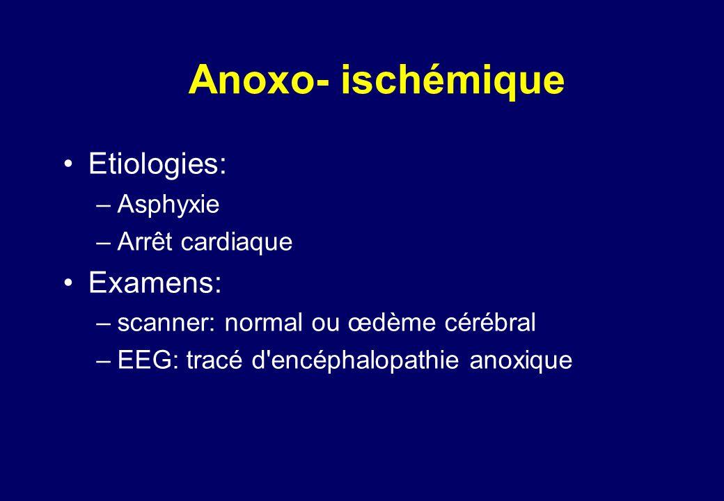 Anoxo- ischémique •Etiologies: –Asphyxie –Arrêt cardiaque •Examens: –scanner: normal ou œdème cérébral –EEG: tracé d encéphalopathie anoxique