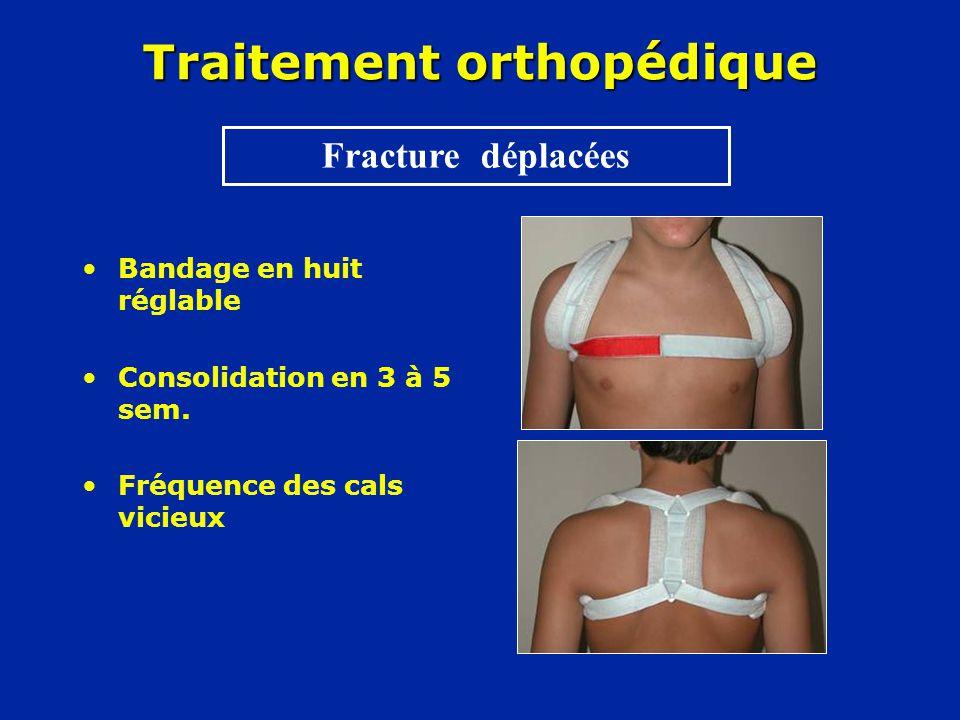 Traitement orthopédique •Bandage en huit réglable •Consolidation en 3 à 5 sem. •Fréquence des cals vicieux Fracture déplacées