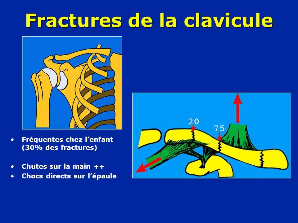 •Fréquentes chez l'enfant (30% des fractures) •Chutes sur la main ++ •Chocs directs sur l'épaule