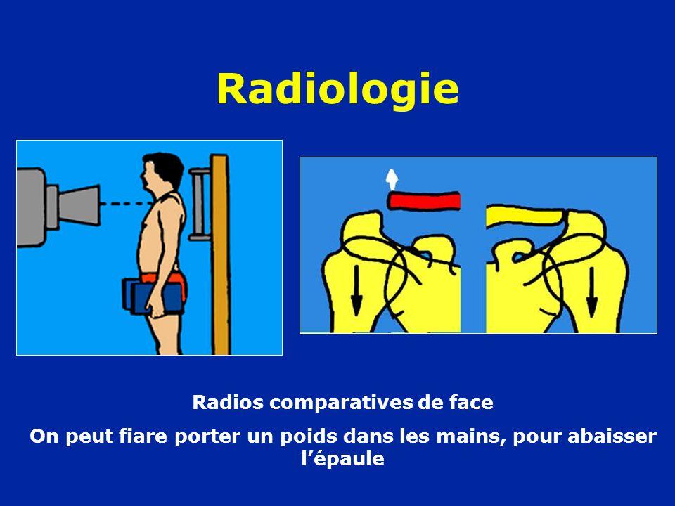 Radiologie Radios comparatives de face On peut fiare porter un poids dans les mains, pour abaisser l'épaule