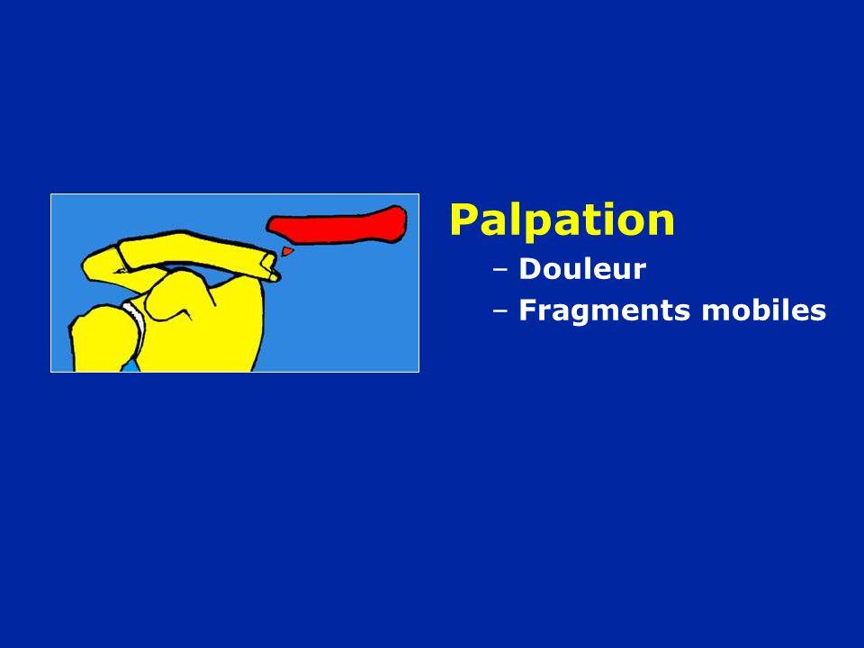 Palpation –Douleur –Fragments mobiles