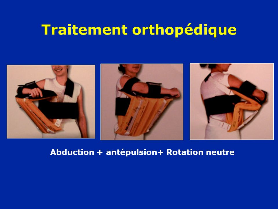 Traitement orthopédique Abduction + antépulsion+ Rotation neutre