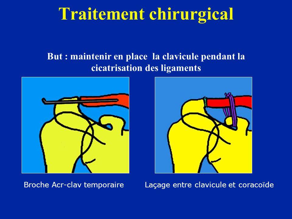 Traitement chirurgical But : maintenir en place la clavicule pendant la cicatrisation des ligaments Broche Acr-clav temporaire Laçage entre clavicule
