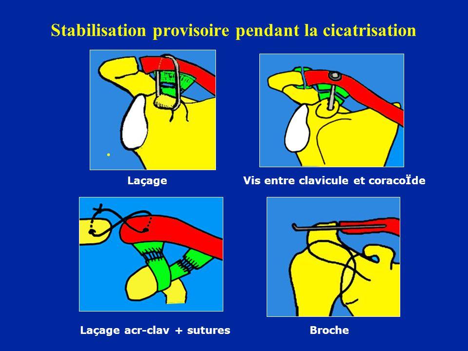 Stabilisation provisoire pendant la cicatrisation Laçage Vis entre clavicule et coracoÏde Laçage acr-clav + sutures Broche