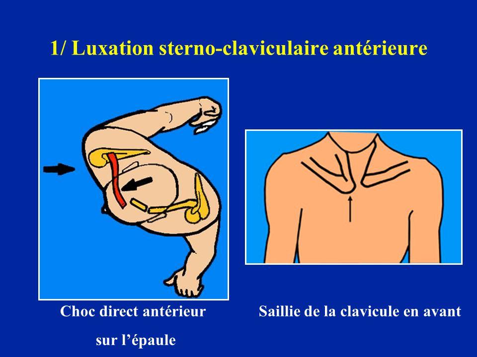 1/ Luxation sterno-claviculaire antérieure Choc direct antérieur Saillie de la clavicule en avant sur l'épaule